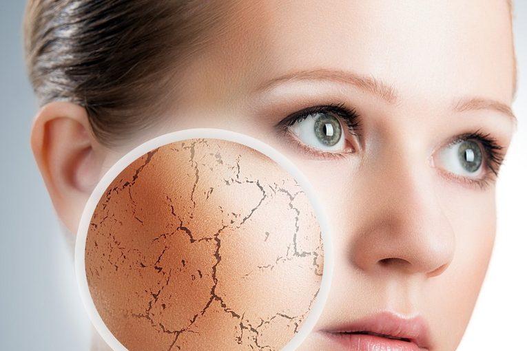 چگونه خشکی پوست را درمان کنیم؟