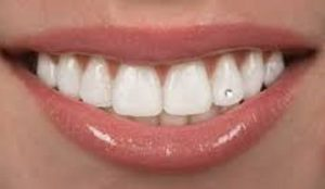 نگین های دندان