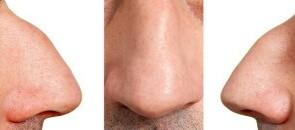 جراحی بینی گوشتی و استخوانی