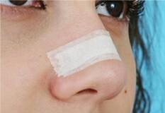 آیا ماساژ بینی بعد از عمل ضروری است؟