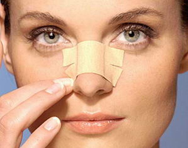 چسب زدن بینی باعث کوچکتر شدن بینی میشود.