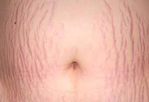 راه های درمان ترک های پوستی  ناشی از بارداری چیست؟