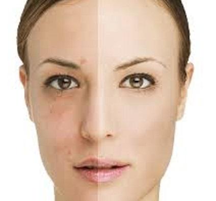 راه درمان لکه های قهوه ای روی پوست چیست؟