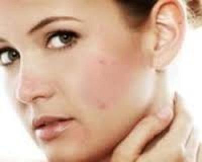 با ترفند های زیر جوش صورتتان را درمان کنید