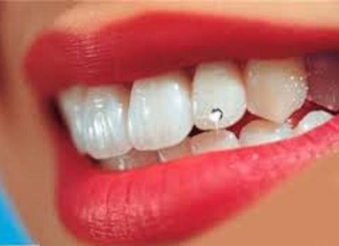در مورد نگین های زیبایی دندان چه می دانید؟