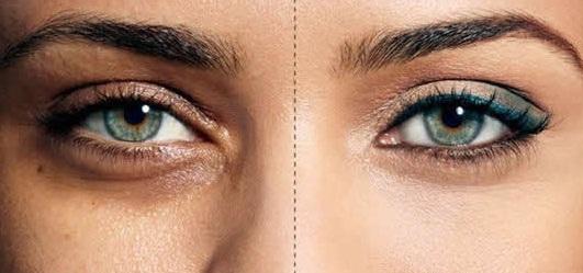 با ویتامین های زیر تیرگی زیر چشم هایتان را برطرف کنید